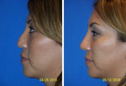 Non-Surgical Rhinoplasty in Miami