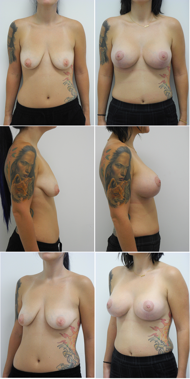 Miami Breast Implants with Lift - Mastopexy