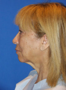 Facelift & Neck Lift Miami - Dr G Cosmetic Surgery