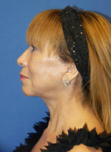 Facelift & Neck Lift & Eyelid Surgery in Miami - Dr G