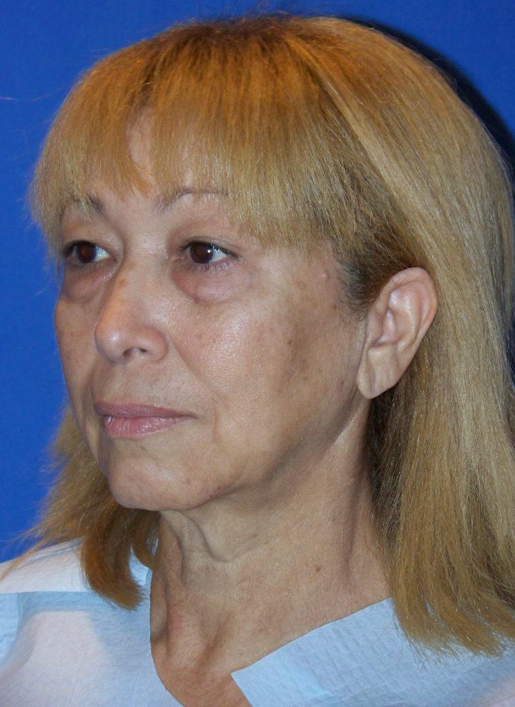 Facelift, Neck Lift & Eyelid Surgery Miami - Dr G Miami