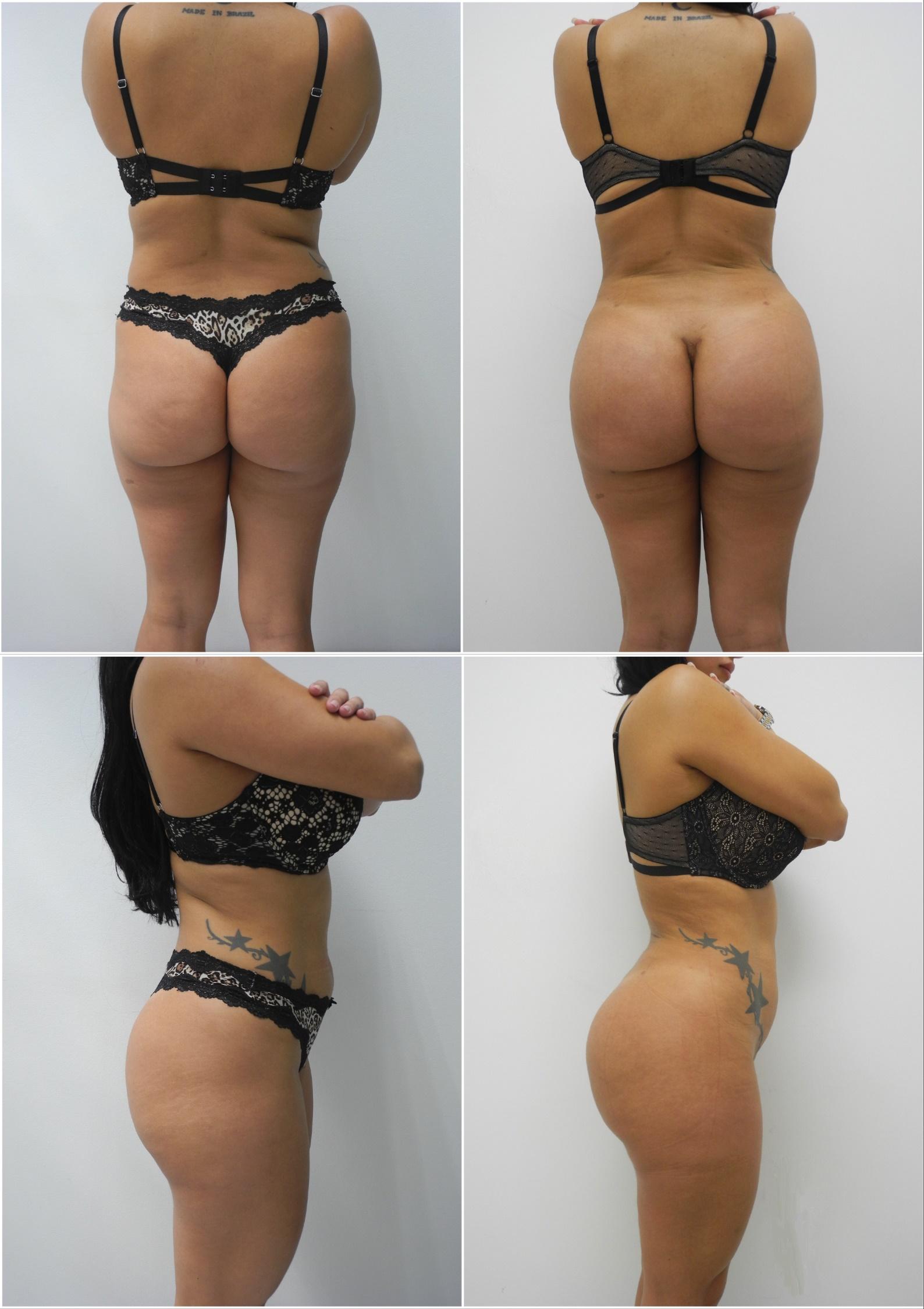 Butt implants price