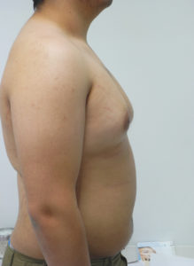 Male Breast Reduction Gynecomastia Surgery - Dr G Miami