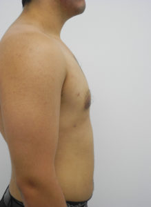 Gynecomastia Correction Surgery Miami - Dr Sam Gershenbaum
