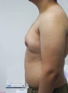 Gynecomastia Miami - Dr Sam Gershenbaum