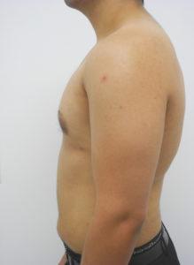 Gynecomastia Correction Miami - Dr Sam Gershenbaum