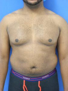 Gynecomastia Correction Miami