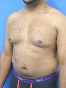 Male Breast Reduction Miami - Dr. G