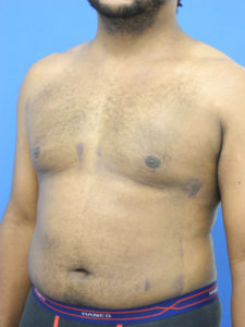 Gynecomastia Correction in Miami