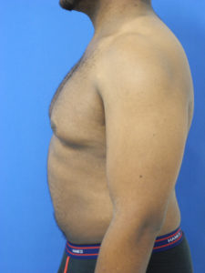 Male Breast Reduction Correction - Miami