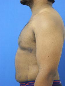 Gynecomastia Miami - Dr. G