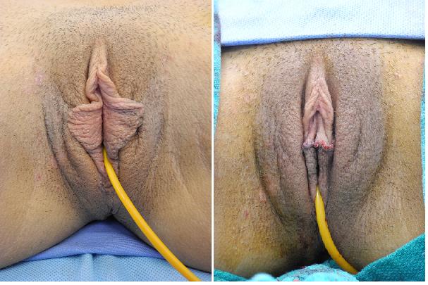 Labiaplasty Miami Dr Gershenbaum