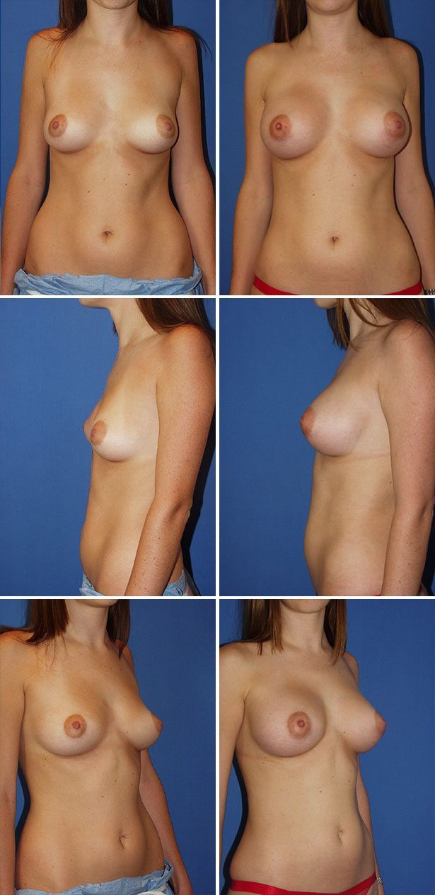 Best Breast Reduction Miami Rotemberg Plastic Surgery