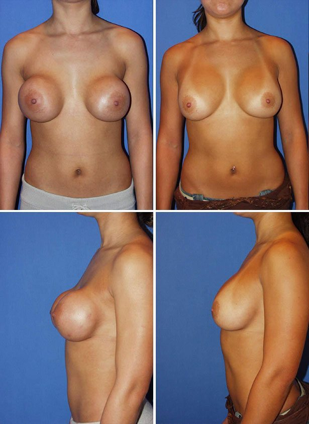 Free boob implants, drawing facial expression smile