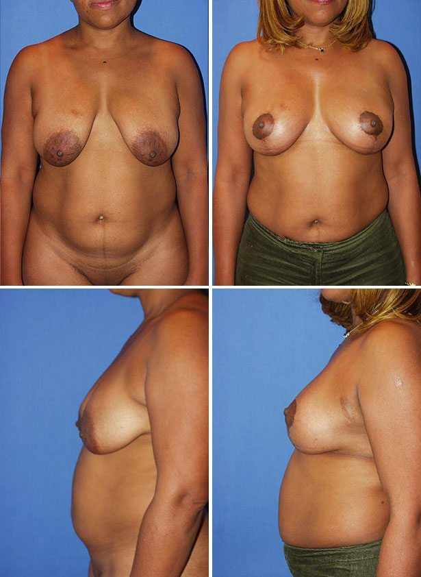 Cosmetic Breast Reduction Surgery 104