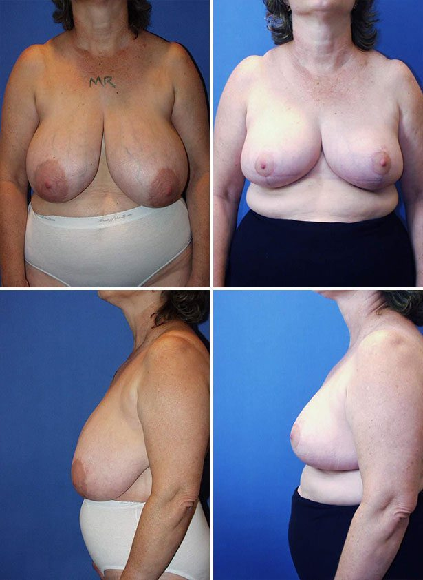 Cosmetic Breast Reduction Surgery 45