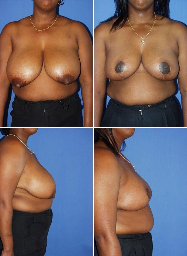 Cosmetic Breast Reduction Surgery 18