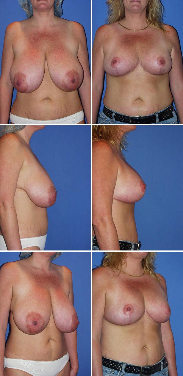 Cosmetic Breast Reduction Surgery 15