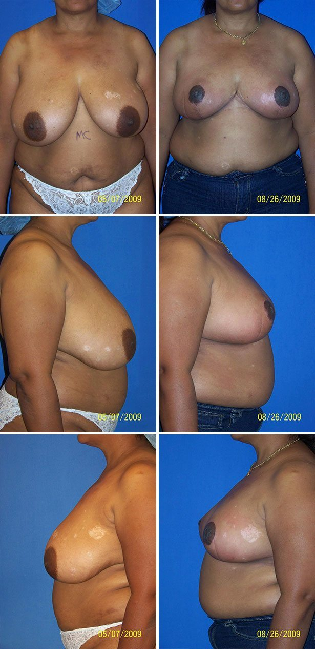 Cosmetic Breast Reduction Surgery 7