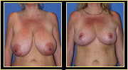 Miami Breast Reduction Surgery - Before & After Photos - Dr. Gershenbaum
