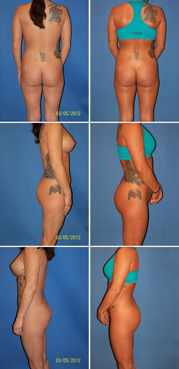 Butt Implants Miami Before & After Photos