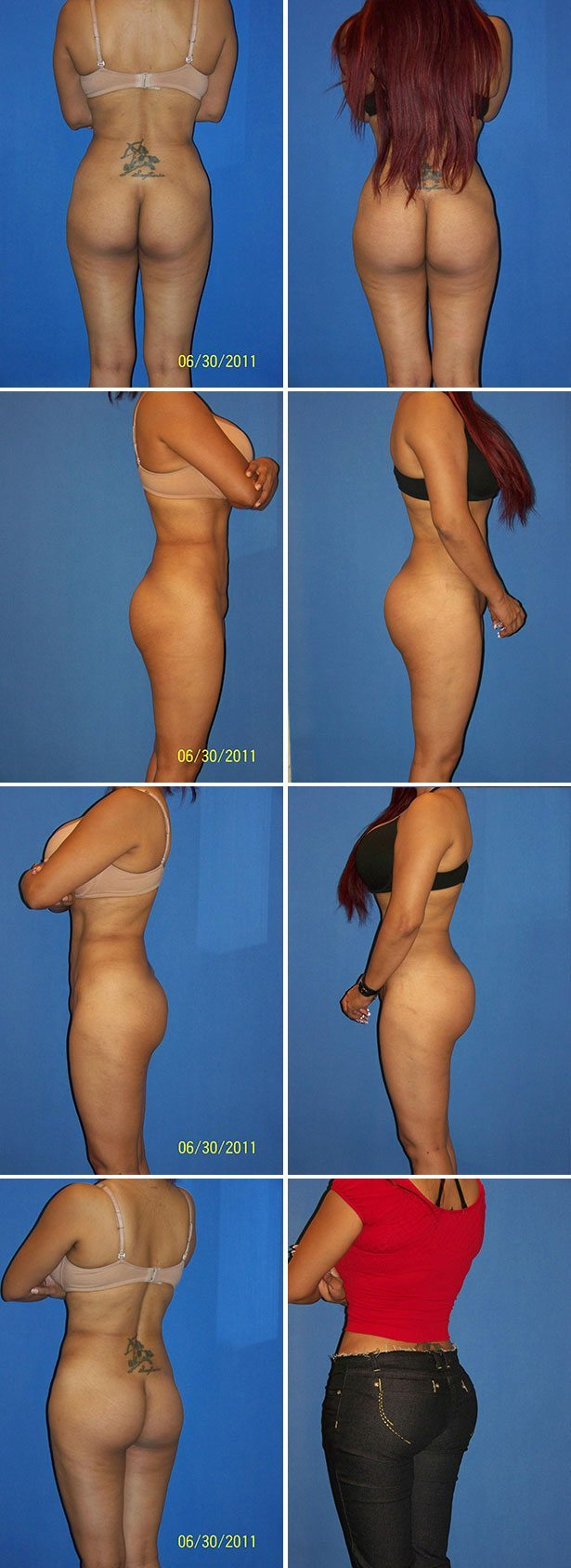 Butt Implants Before & After Photos - Dr. G Cosmetic Surgery