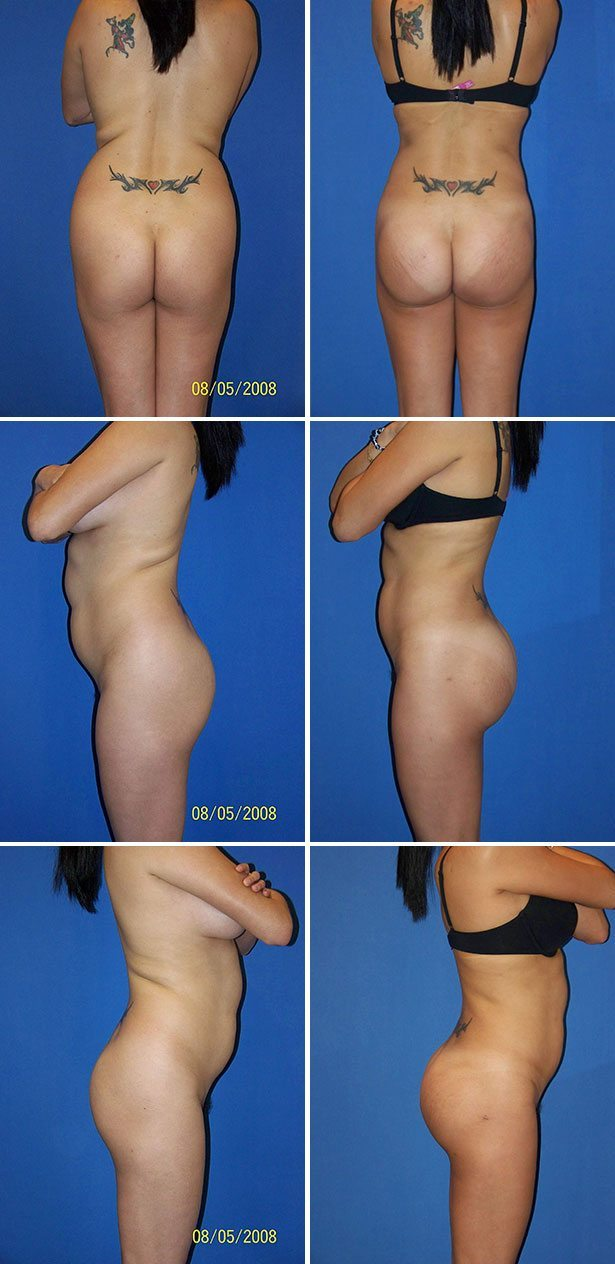 Miami Butt Implants Before & After Photos