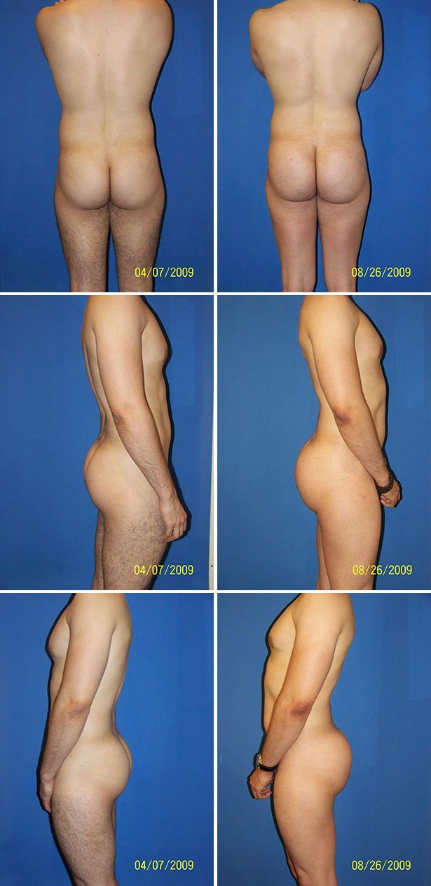 Butt Implants (Gluteoplasty) Plastic Surgery Photos