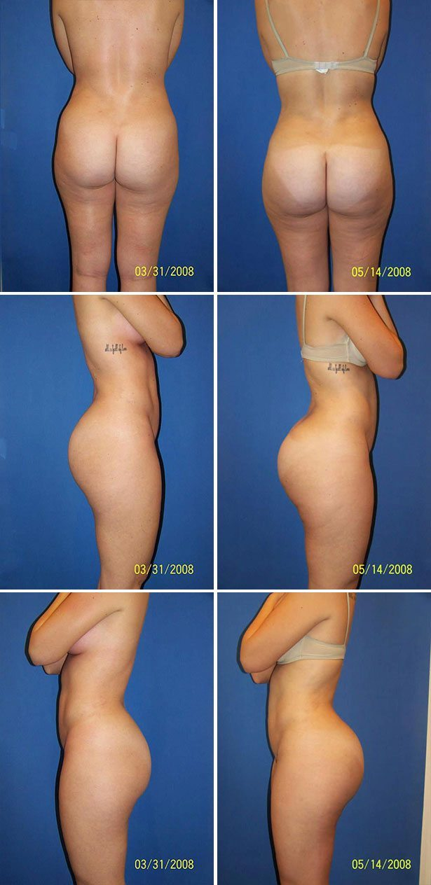 Butt Implants (Gluteoplasty) Photo Gallery
