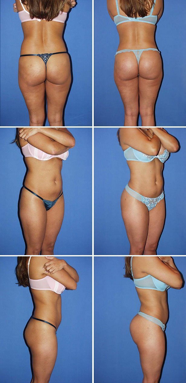Butt Augmentation Photo Gallery, Miami - Dr. G Cosmetic Surgery