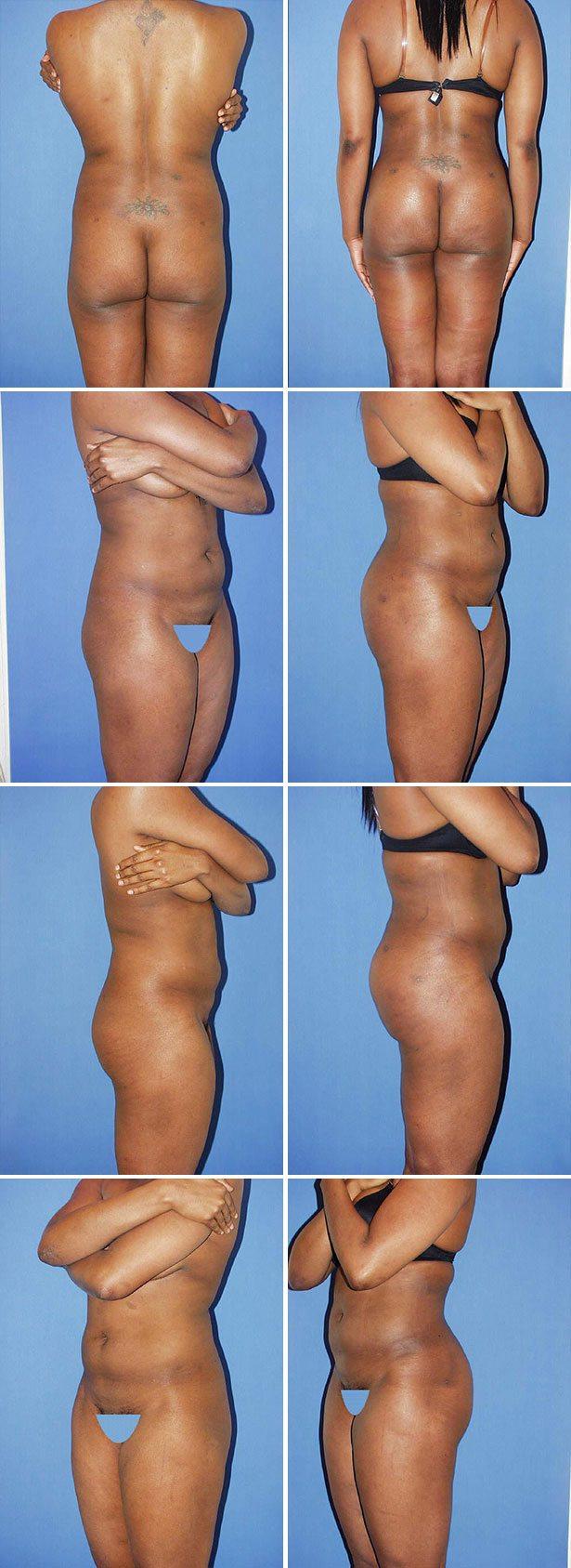 Butt Implants Before & After Photos - Miami - Dr. Gershenbaum