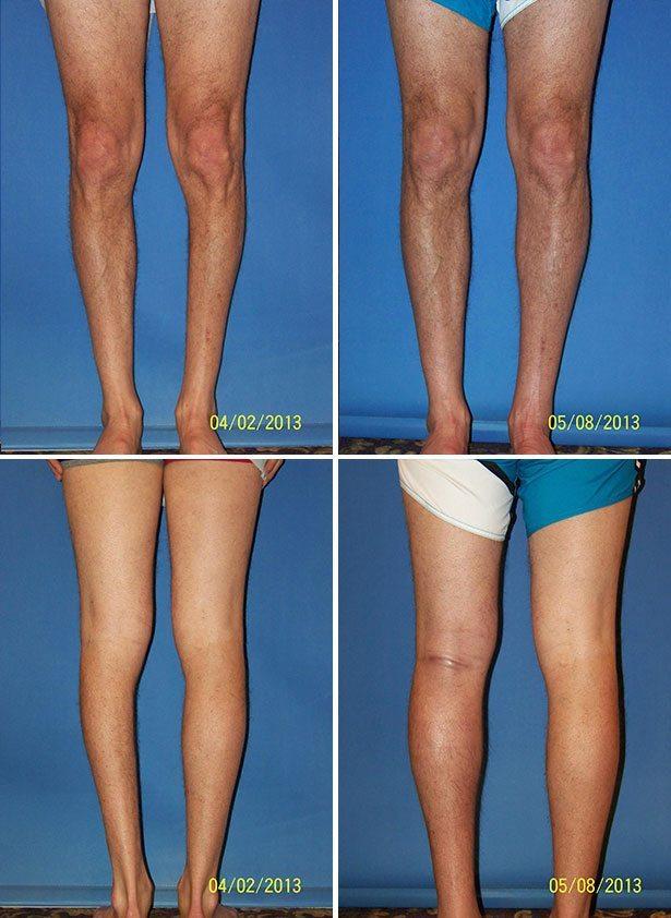 Чтоб Икры Ног Похудели. 12 упражнений для похудения в области голени + диета и советы для стройных икр