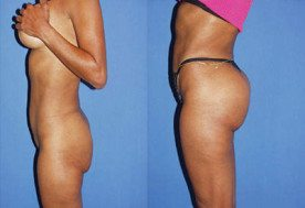 Miami Butt Implants Before & After Photos - Dr G Cosmetic Surgery