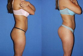 Butt Implants Miami - Buttocks Implants (Gluteoplasty) | Dr
