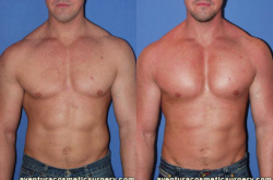Male Pectoral Implants Miami