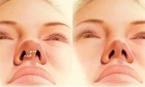 Nose Job (Rhinoplasty Surgery) - Miami, FL