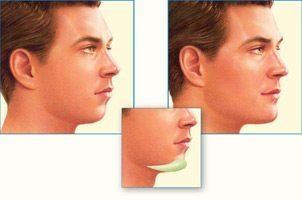 Facial Implants Pictures