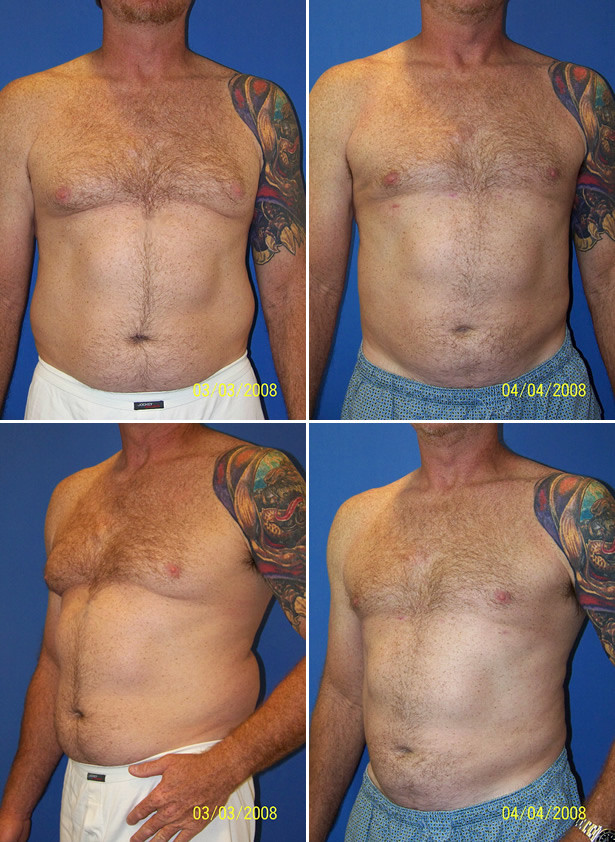 50 year old gentleman from Ft Lauderdale, Florida one month after  correction of Gynecomastia, or male breast enlargement with Liposculpture  performed by Dr ...