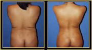 Liposuction / Liposculpture