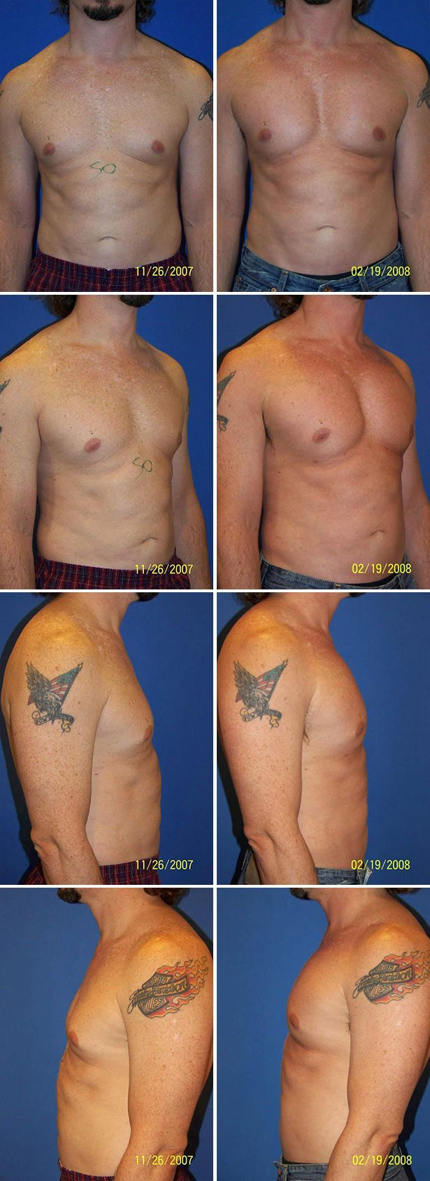 Male Pectoral Implants Dr G Cosmetic Surgery