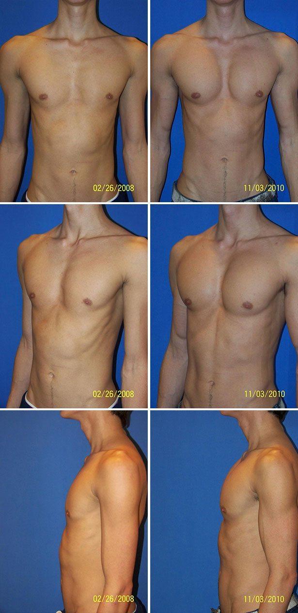 Augmentation mammaire masculine libre