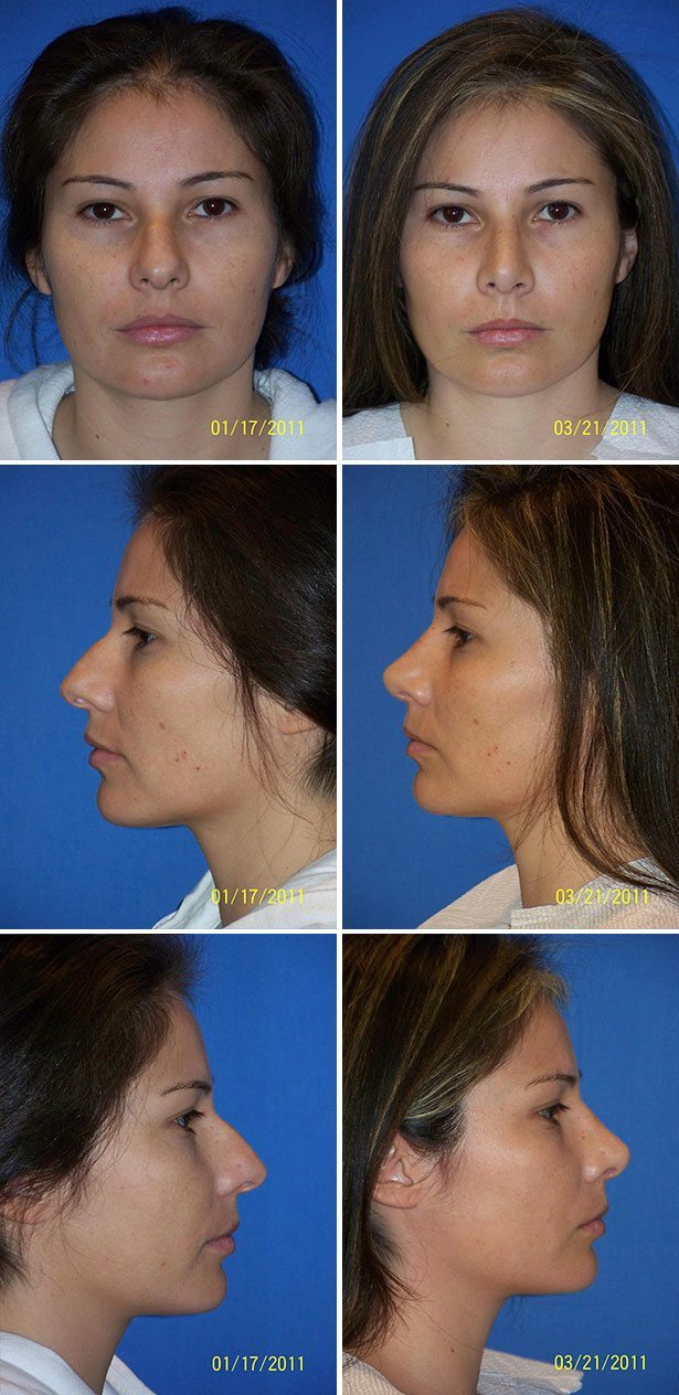 Rhinoplasty Nose Surgery Before After Photos Miami Plastic Surgery