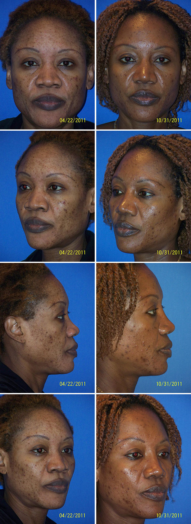 Rhinoplasty Nose Dr G Cosmetic Surgery