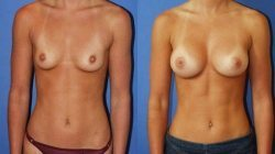 Breast Implants, Miami Plastic Surgery - Dr. G