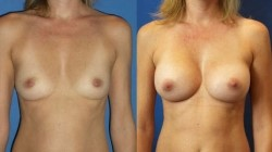 Miami Breast Augmentation Surgery