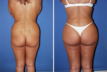 Butt Implants & Butt Lift, Miami