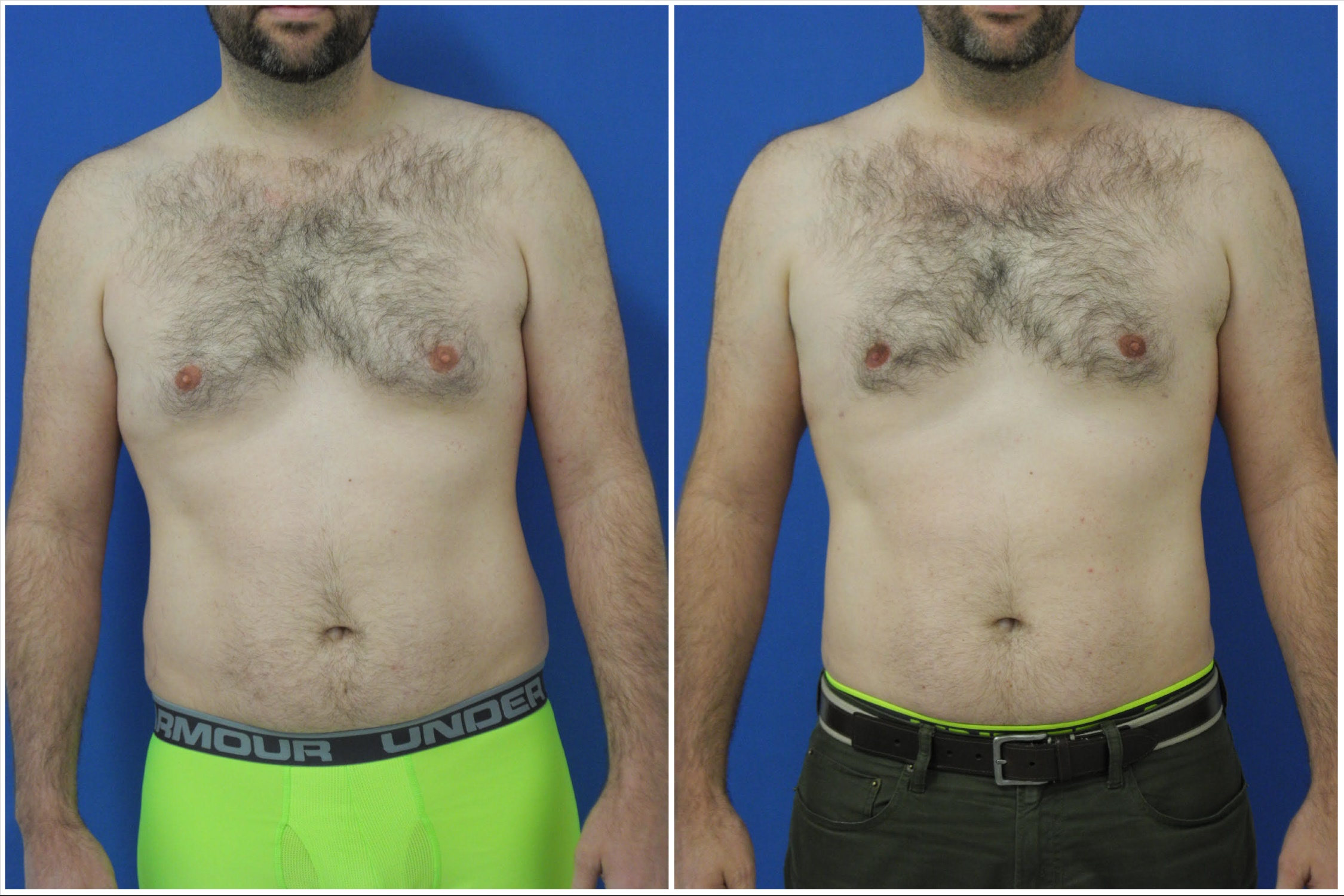 Male Breast Reduction (Gynecomastia) - Dr  G Cosmetic Surgery