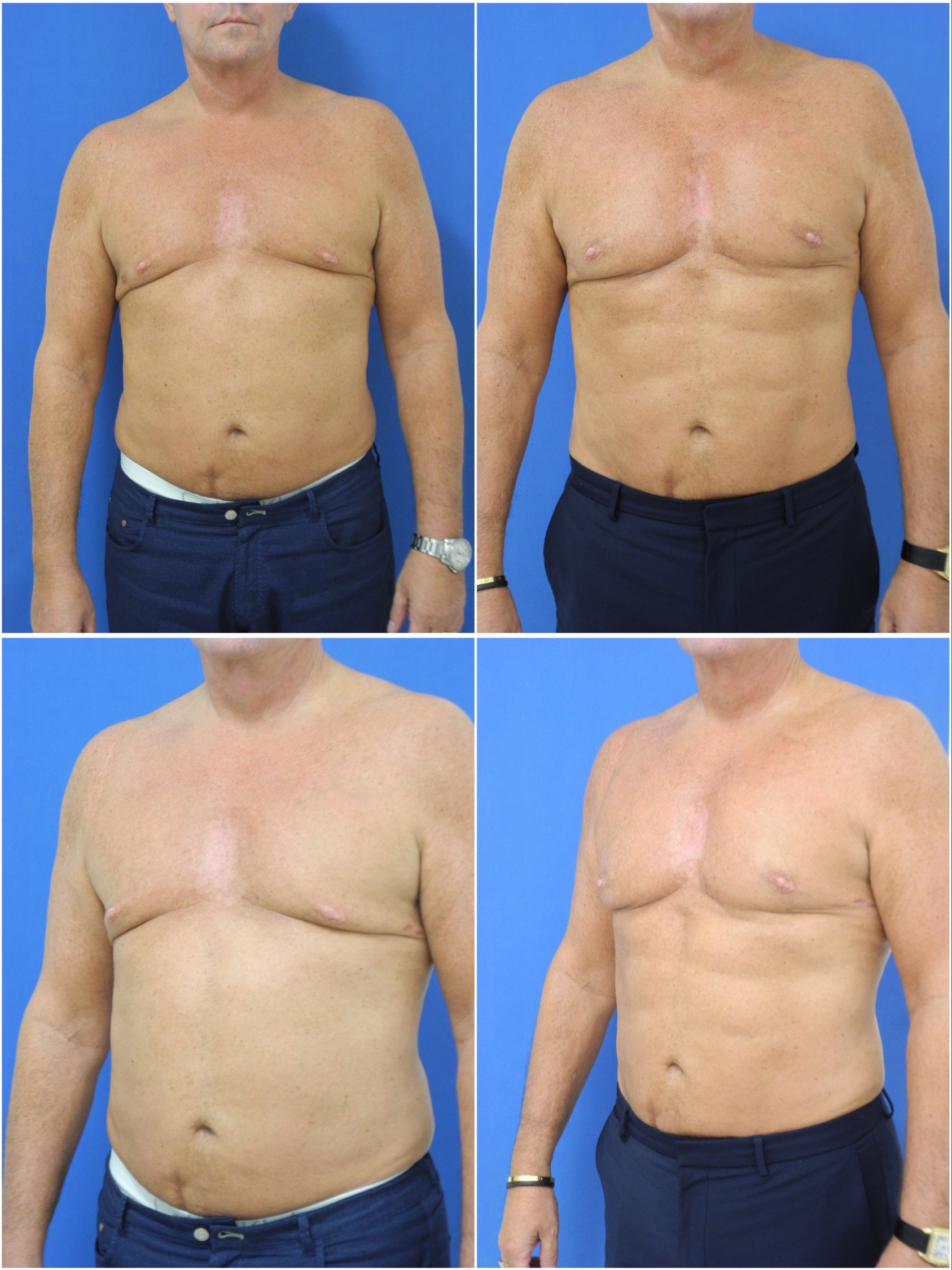 Liposuction Abdominal Etching and Pec Implants Miami