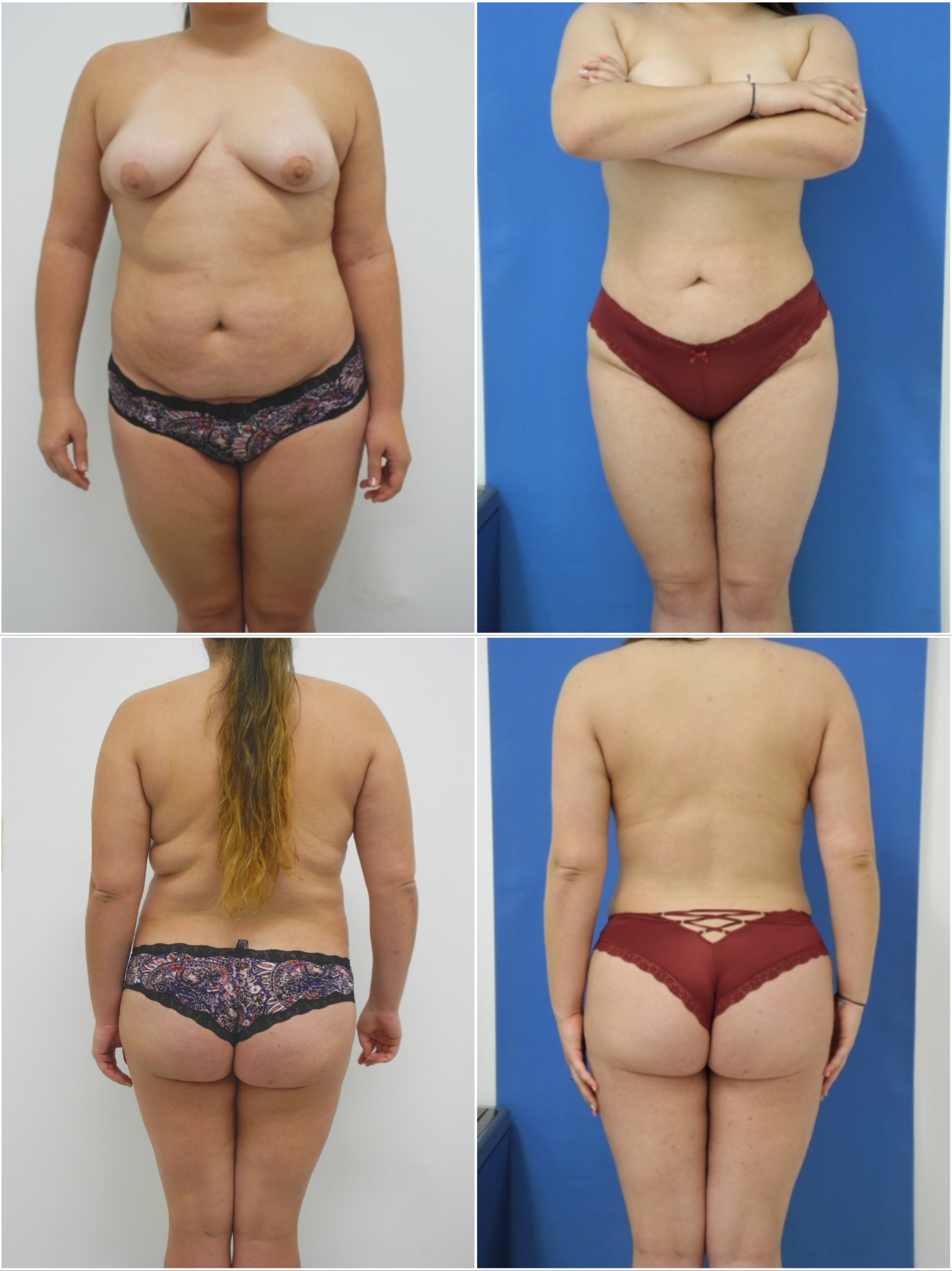 Liposuction Dr G Cosmetic Surgery